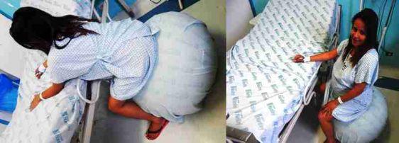 Técnica com bola suíça abrevia o trabalho de parto